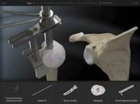virtualsurgery